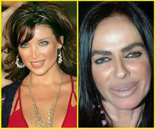 Best before and after celebrity cosmetic surgery