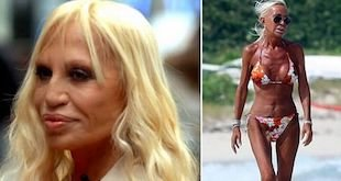 donatella versace before and after