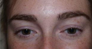 eyebrow restoration surgery