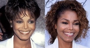 Janet Jackson Plastic Surgery Before and After Photos