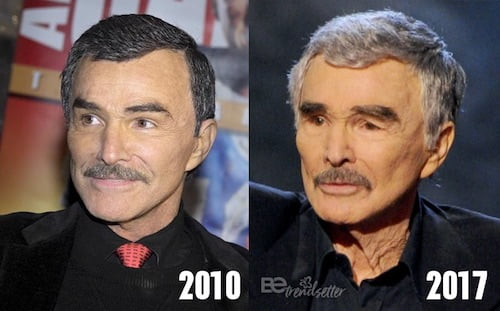 burt reynolds plastic surgery gone wrong