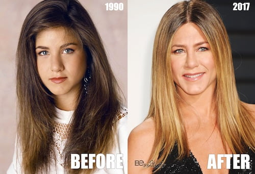 jennifer aniston nose job