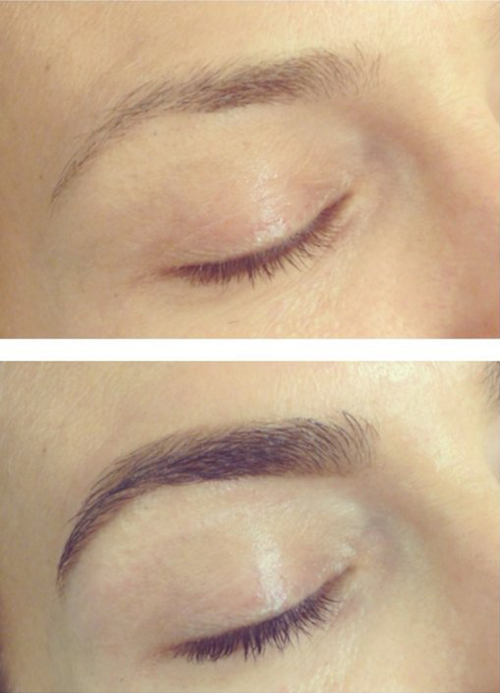 organyc brow serum before and after photos