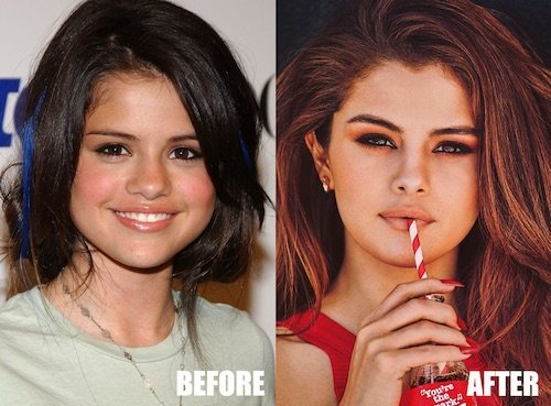 selena gomez lip injections before and after photo