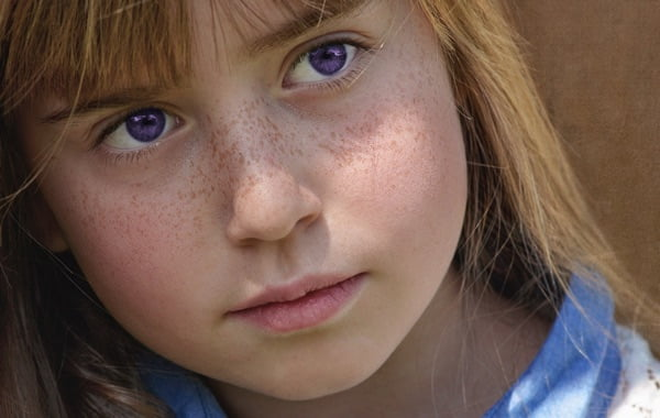 Purple Eye Disease - Symptoms And Causes