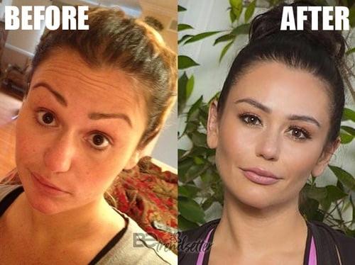 jennifer lynn farley jwoww plastic surgery before and after