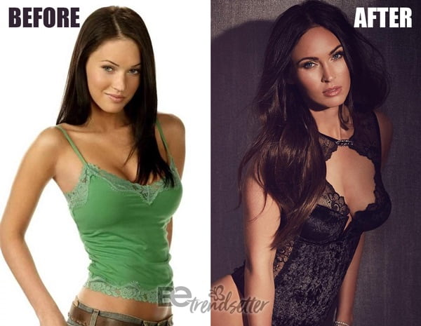 megan fox boob job before and after