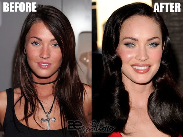 megan fox cheek filler before and after