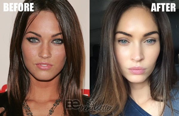 megan fox lip fillers
