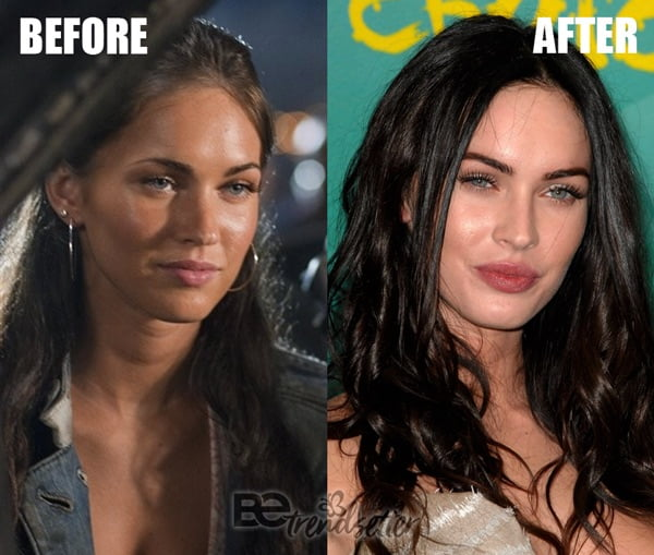 megan fox nose job 2007
