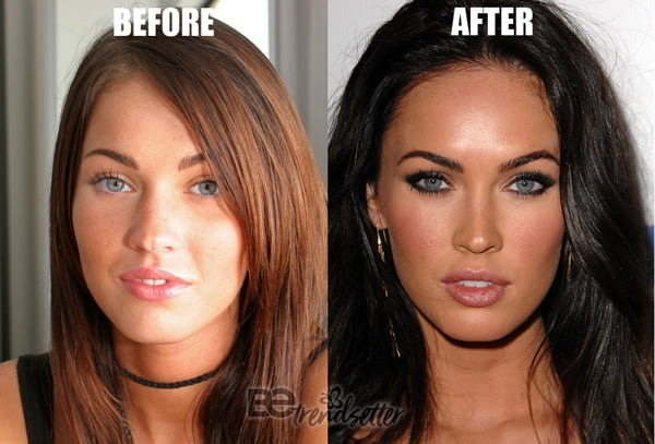 megan fox nose job before and after