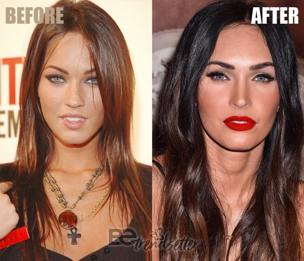 megan fox plastic surgery results