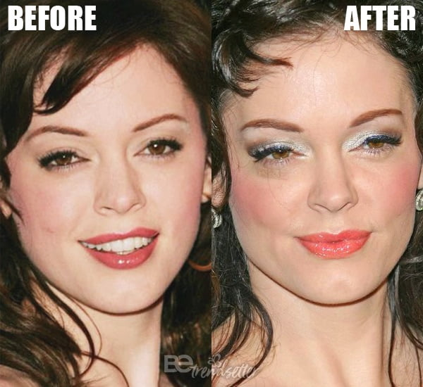 Rose McGowan eyelid surgery