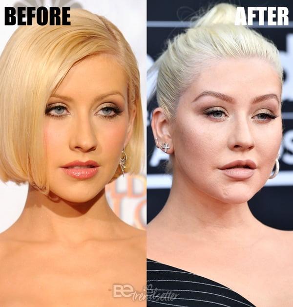 Christina Aguilera Plastic Surgery SECRETS - Boob Job, Lip