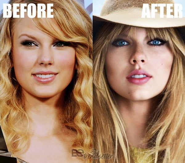 Taylor Swift lip fillers