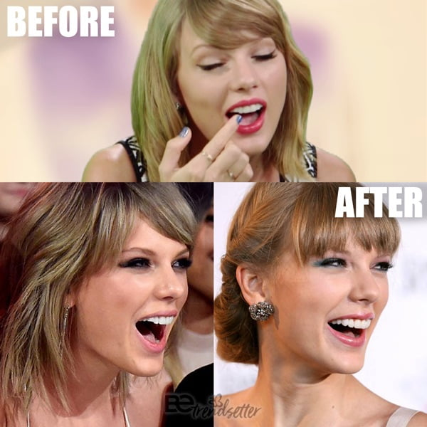 Taylor Swift chipped tooth