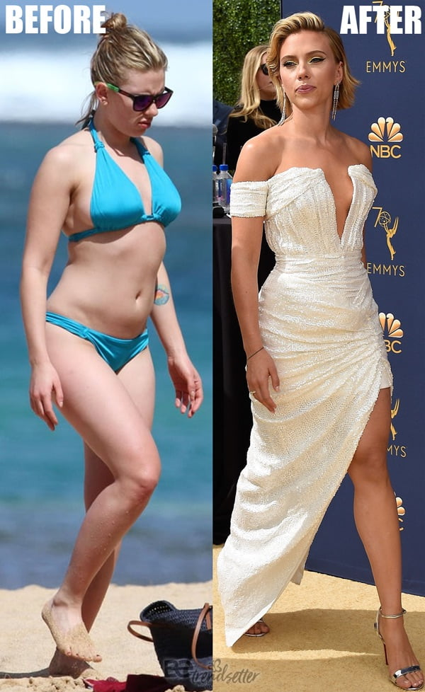 Scarlett Johansson Plastic surgery: Breast Reduction ...
