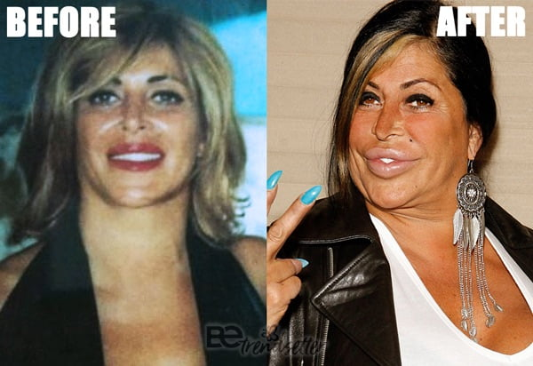 Angela Raiola plastic surgery disaster