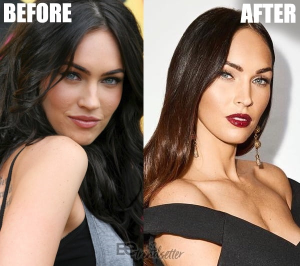 Megan Fox face peel