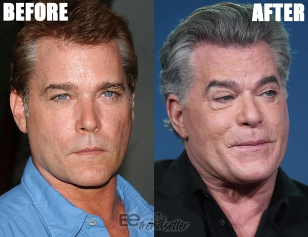 Ray Liotta plastic surgery disaster