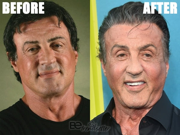 Sylvester Stallone plastic surgery disaster