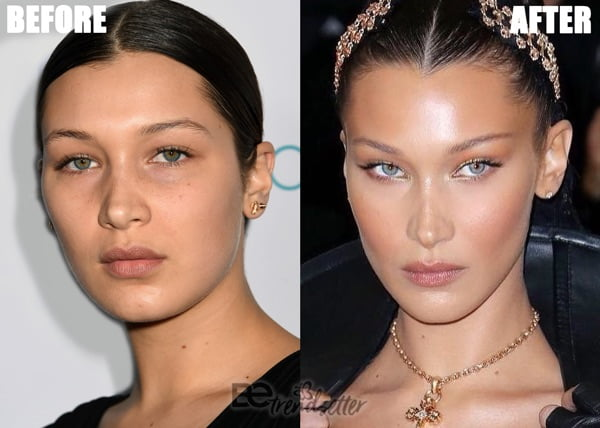 Bella Hadid plastic surgery 2019