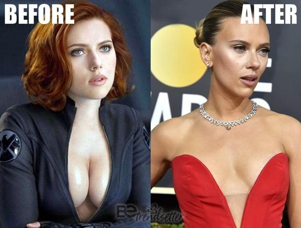Scarlett Johansson Boob Job 2020