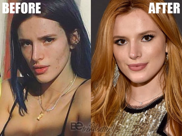 Bella Thorne acne scar surgery