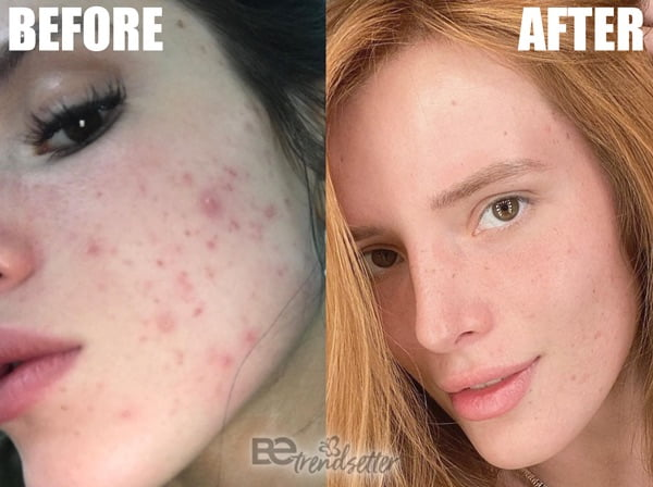 Bella Thorne Acne Treatment