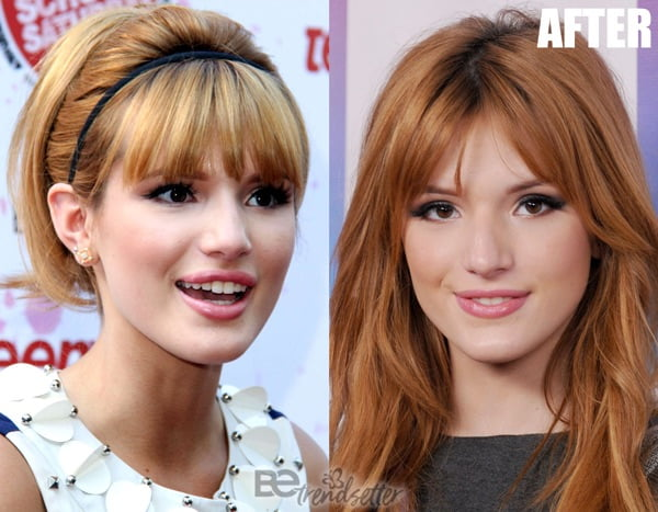 Bella Thorne lip filler 2013