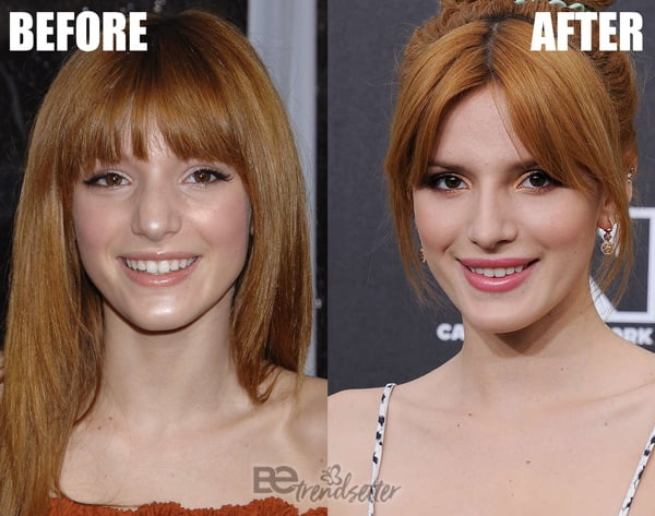 Bella Thorne Nose Job 2014